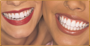 Beverly Hills Cosmetic Dentists